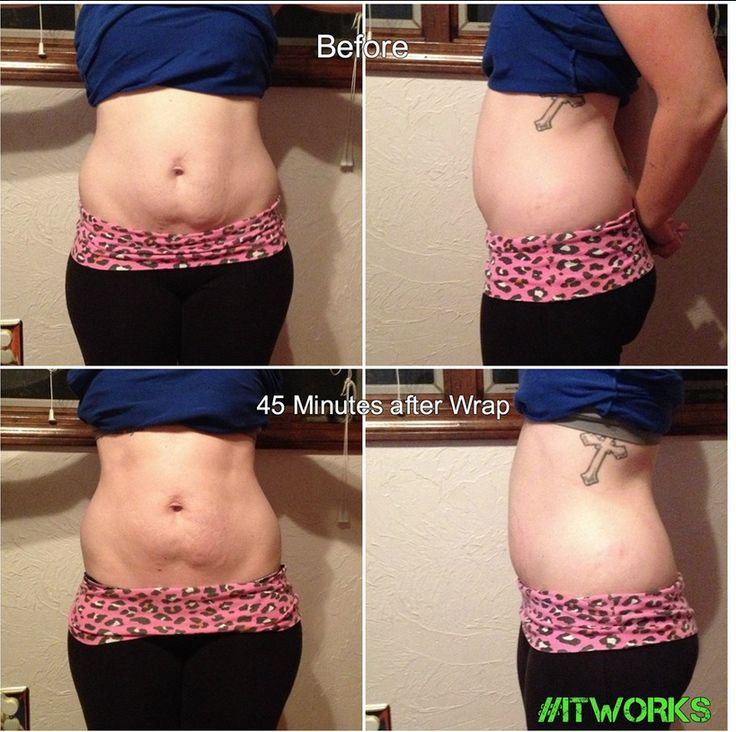 ItWorks wraps results after 45 minutes. There are so many other places that can also be wrapped to help tighten, tone and define lose skin. Email me for information: wrappingtodefine@gmail.com Health, Fitness, Tighten, Tone, Skinny, Lose Weight, Wrapping to Define, Thin Stomach, Tighten Stomach, Thin Arms, Thing Thighs, Eliminate backfat.