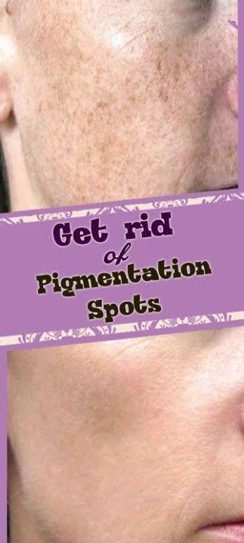 Remedies For Pigmentation Spots (Dark Spots Removal DIY)
