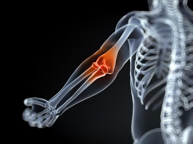 Inflammatory arthritis not only affects the joints, there can be systemic effects.