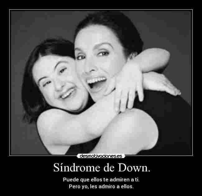 sindrome di down pdf free