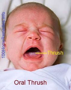 Oral Thrush in Babies : Causes, Prevention and Treatment
