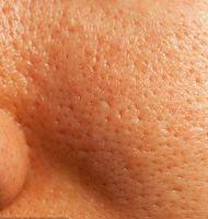 Tips de Belleza para Reducir los Poros Abiertos de la Cara
