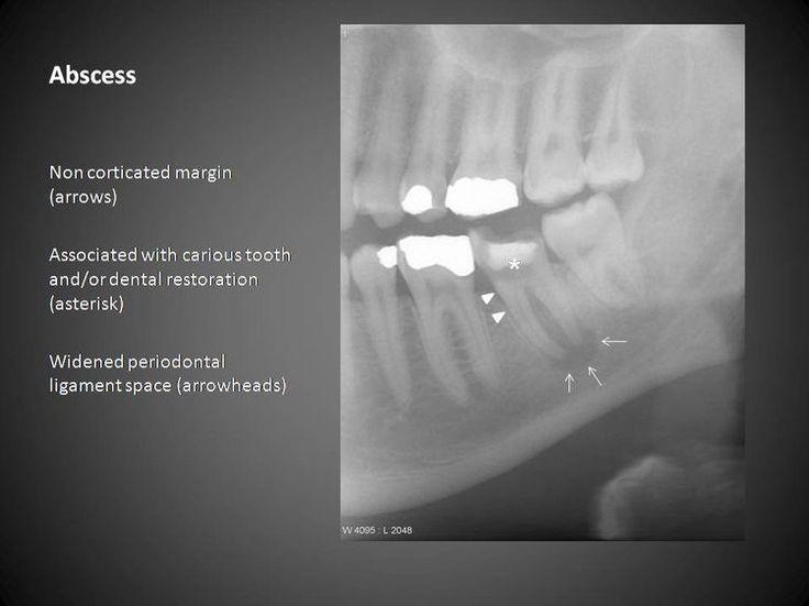 140 best oral radiology images on pinterest