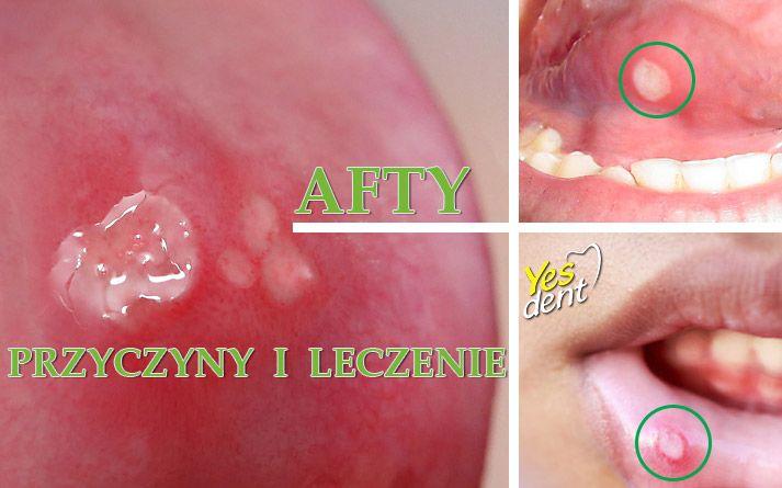 #afty przyczyny i #leczenie . #stomatolog #stomatologwrocław #dentysta #dentystawrocław #yesdent