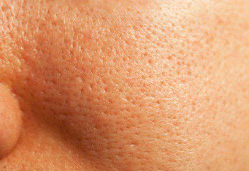 Tratamiento natural de los poros dilatados
