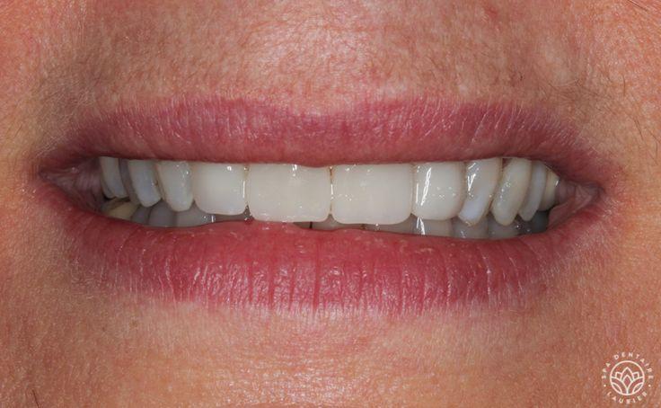 Après  Elle voulait régler un problème de dents usées et courtes. Elle a décidé de se faire poser sept facettes de porcelaine créées selon la procédure «sourire en 1 jour».