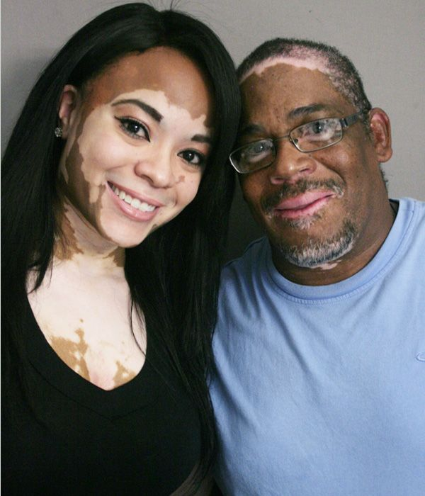Cheri Lindsay talks with her father, Phillip, about vitiligo, a rare skin condition they share.