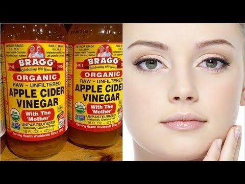 Lava Tu Cara Por 5 Días Con Vinagre De Manzana. Te Sorprenderás De Los Resultados Obtenidos!!! - YouTube