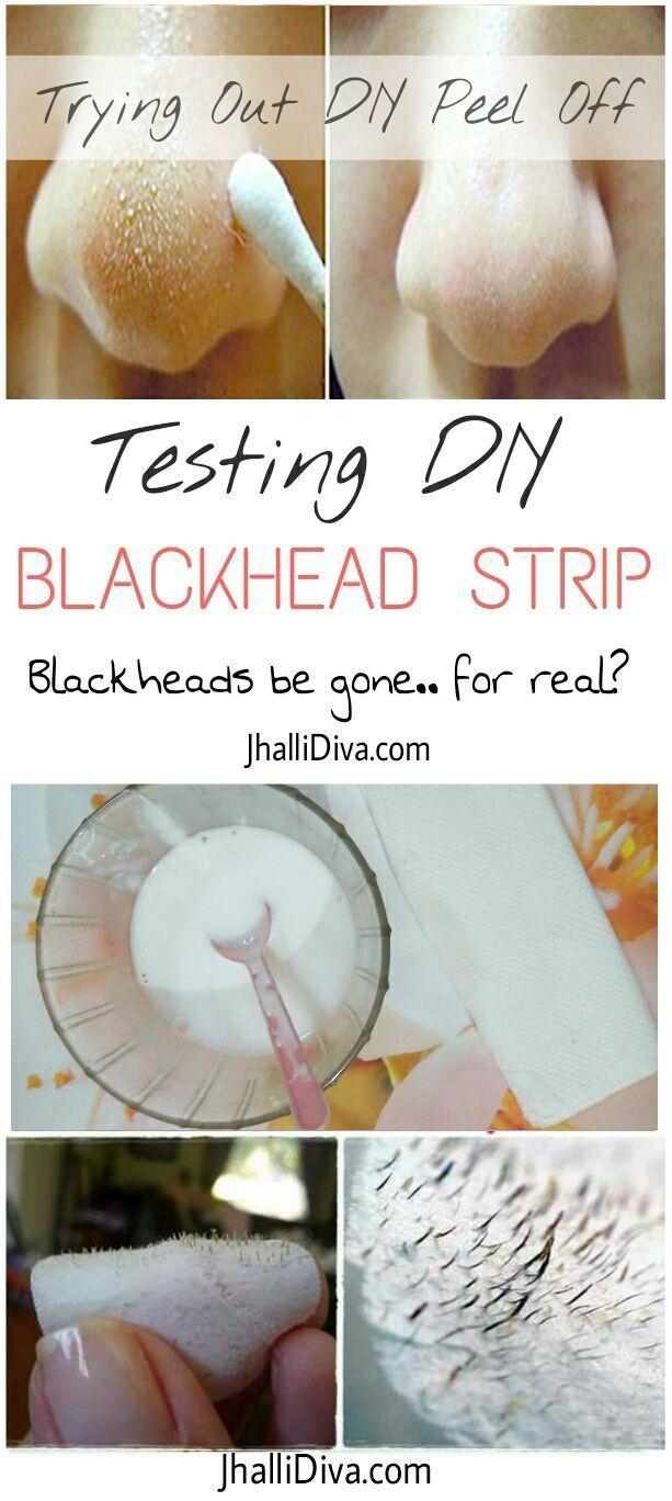 5 Remedies To Remove Blackheads