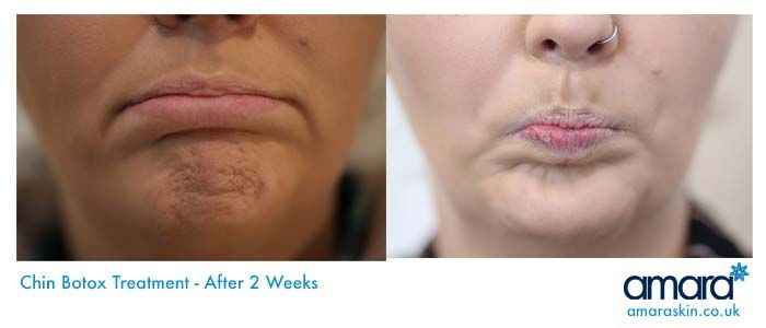 What Are Those Lines Marks On My Chin? | Botox | Amara Harley Street