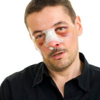 10 Tips For Recovering From Nose Surgery  [ BodyBeautifulLaserMedi-Spa.com ] #cosmetic #spa #beauty