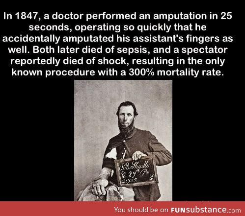 Robert Liston performed a operation with a 300% mortality rate