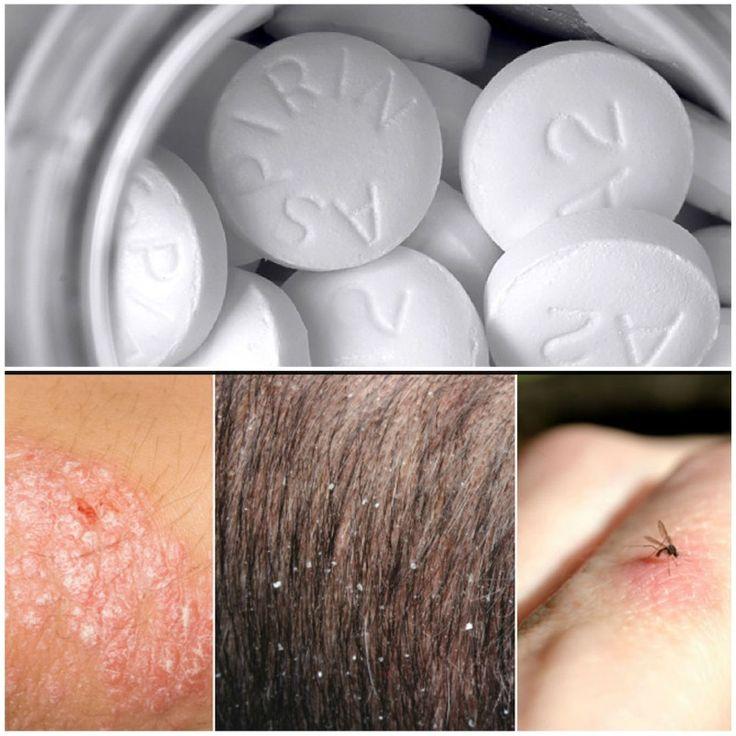 9 καταπληκτικές χρήσεις της ασπιρίνης (φαρμακευτικές και μη)