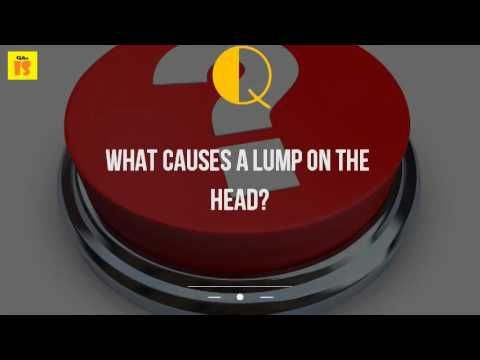 What Causes A Lump On The Head? - WATCH VIDEO HERE -> http://bestcancer.solutions/what-causes-a-lump-on-the-head    *** head and neck cancer causes ***   Similar, and all the other symptoms probably related to stress of worrying about it they usually go way around penis head in one or two rowsthey are not sexually transmitted caused by bad hygiene 23 apr 2015 however, see your gp if you develop a new lump...