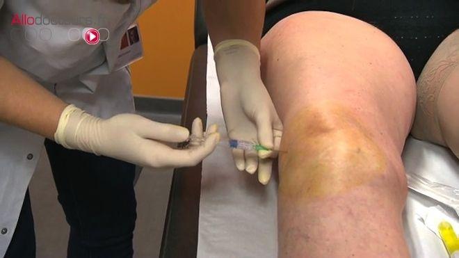 Les injections de visco-supplémentationà base d'acide hyaluronique devraient bientôt être déremboursées. En cause: leur efficacité trop faible. Les associations de patients et certains rhumatologues contestent cette décision qui pourrait avoir des répercussions sur la prise en charge de la douleur.