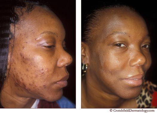 Natural Remedies For Dark Spots On African American Skin