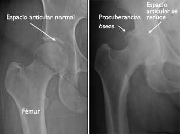 Reemplazo total de cadera (Total Hip Replacement)-OrthoInfo - AAOS
