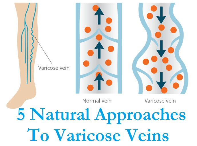 Healthy veins: ten great diet tips