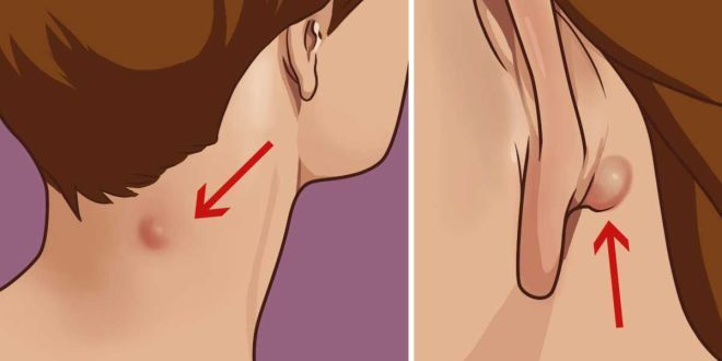 Do You Have A Lump On Your Neck, Back Or Behind Your Ear? Here Is What You Need To Know
