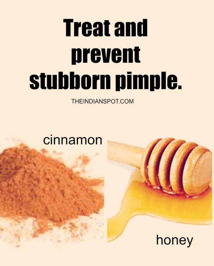 how to get rid of pimples in two days