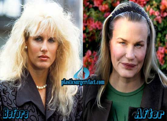 Daryl Hannah Plastic Surgery Gone Wrong | http://plasticsurgeryfact.com/top-10-pictures-of-celebrity-plastic-surgery-gone-wrong/
