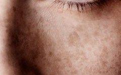 Μήπως το δέρμα σας είναι κουρασμένο, γεμάτο ρυτίδες και έχει χάσει τη λάμψη και την ελαστικότητά του ; Η φυσική αυτή μάσκα που σας προτείνουμε αποτελεί την ιδανική λύση για την αντιγήρανση του δέρματος και