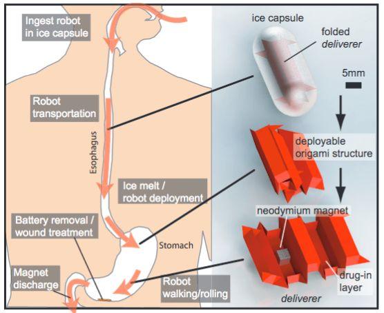 Ingestible 'origami robot' + vein viewer + capture vascular system + da vinci surgical robot