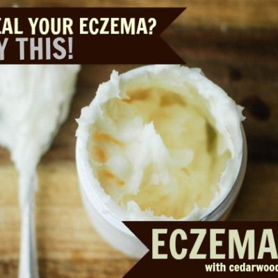 Homemade Eczema Cream You will need: – 1/2 cup shea butter – 20 drops geranium essential oil – 30 drops cedarwood essential oil – 20 drops lavender essential oil  Simply mix all the ingredients together in a small jar