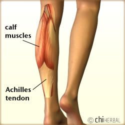 pulled calf muscle