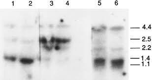 Image result for northern blotting results