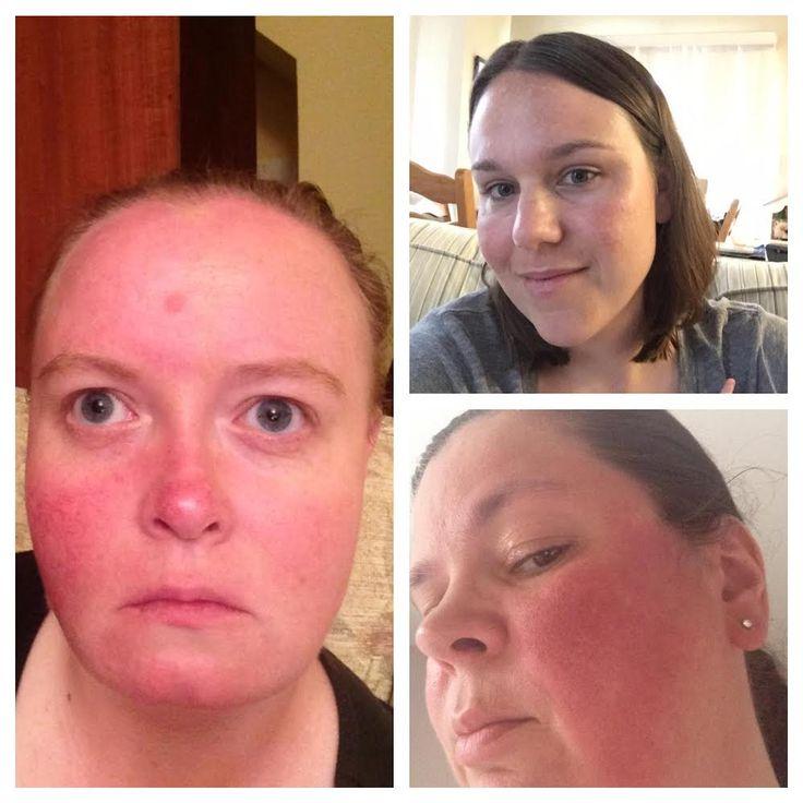 22 best rosacea images on pinterest rosacea eyes acne. Black Bedroom Furniture Sets. Home Design Ideas