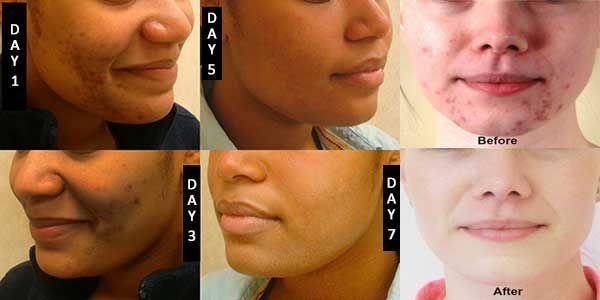 So werden Sie Akne und fettige Haut in nur 7 Tagen…