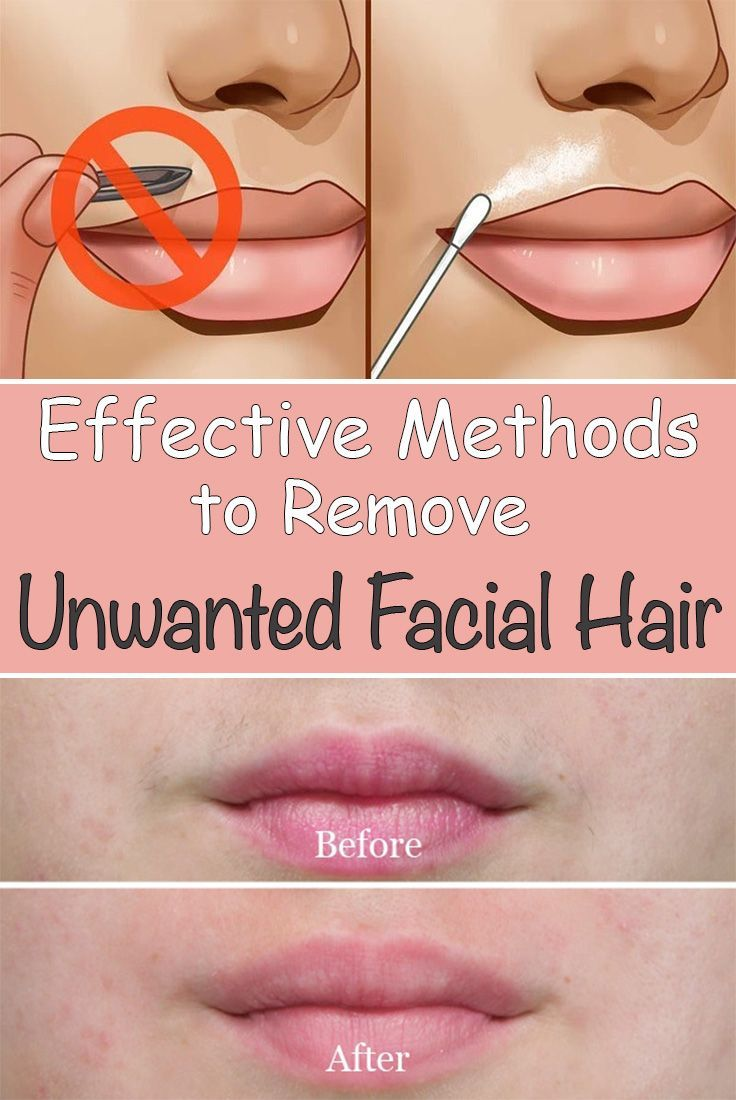 Best hair removal options face