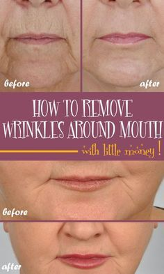 How to remove deep wrinkles around the mouth with little money