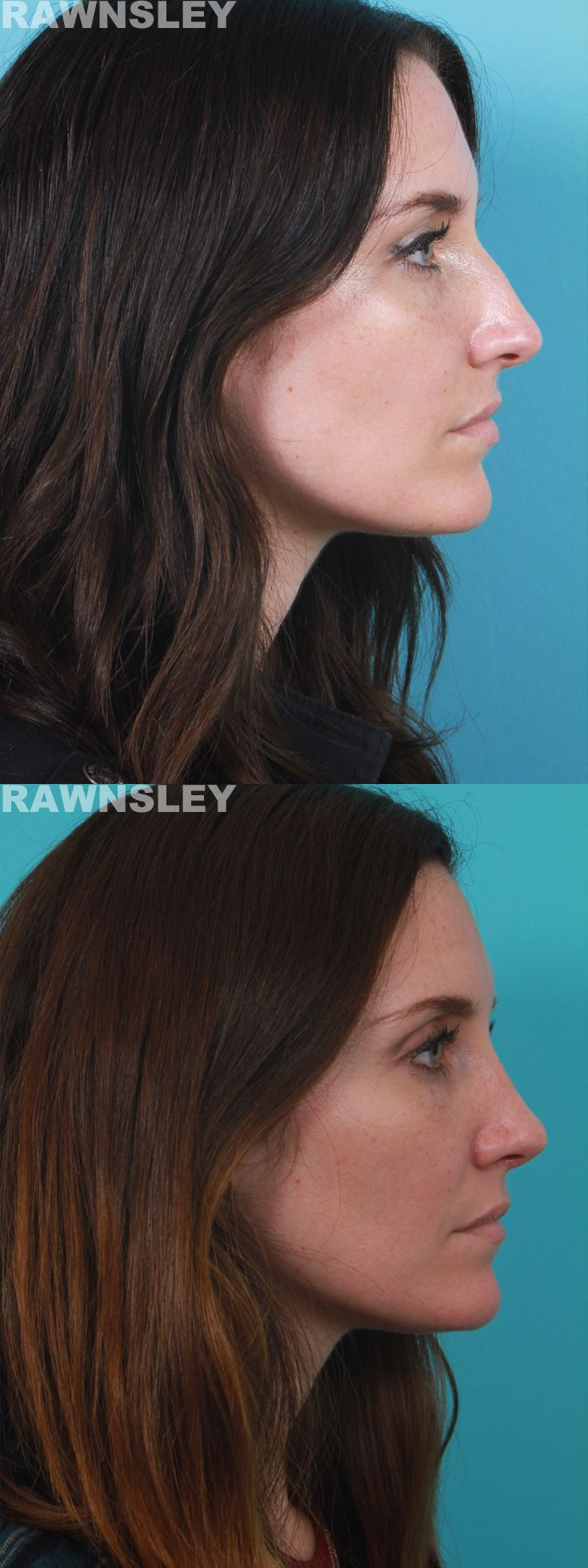 Rhinoplasty Before & After | Rawnsley Plastic Surgery