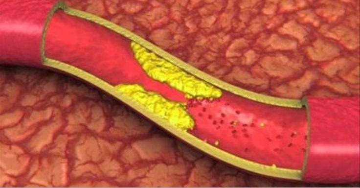 La bevanda da bere appena svegli per dire addio a colesterolo e pressione alta – Proponiamo un incredibile rimedio naturale perfetto se soffrite di pressione alta, eccesso di colesterolo e arterie ostruite. Questi...