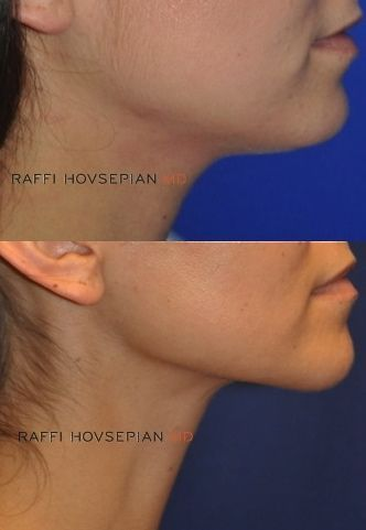 Get Rid of Your Double Chin Dr Raffi Hovsepians Model Like Jawline Neck Enhancement Technique Using only a single 3mm incision Dr Hovsepian uses his pioneered advanced t…