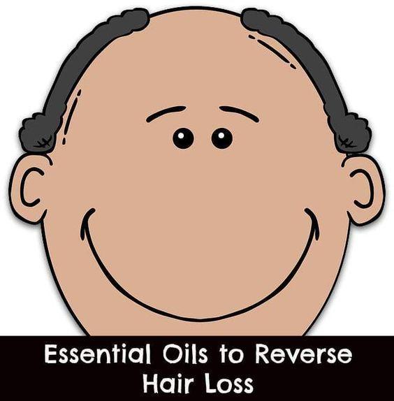 essential oils for hair loss #hairlossessentialoils
