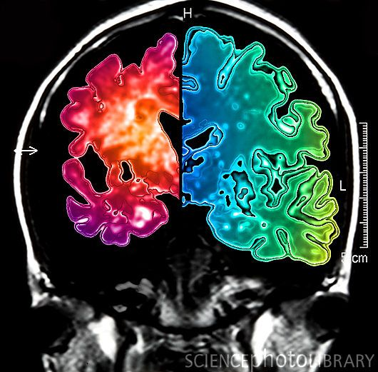 Alzheimer's brain (left side) compared to a normal brain (right side).
