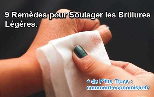 9 Remèdes pour Soulager les Brûlures Légères.