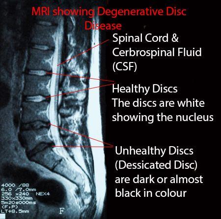 44 Best Images About Degenerative Disc Disease On