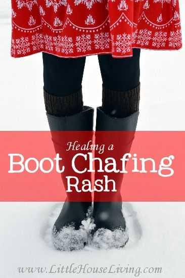 How to stop and heal a boot chafing rash and how to make a simple leg wrap that will help it not ever come back!