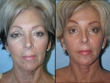Attain Your Very Own Facelift Without Surgery By Employing Straightforward Facial Toning Methods