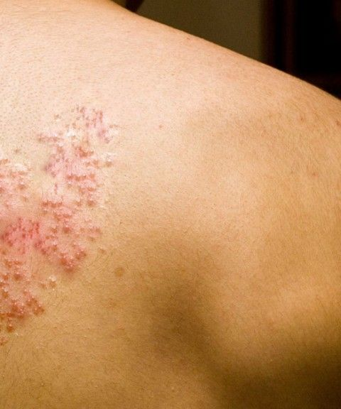 Shingles is a viral infection that causes a painful rash. It is a secondary outbreak of the chicken pox virus. Read on how to get rid of shingles.