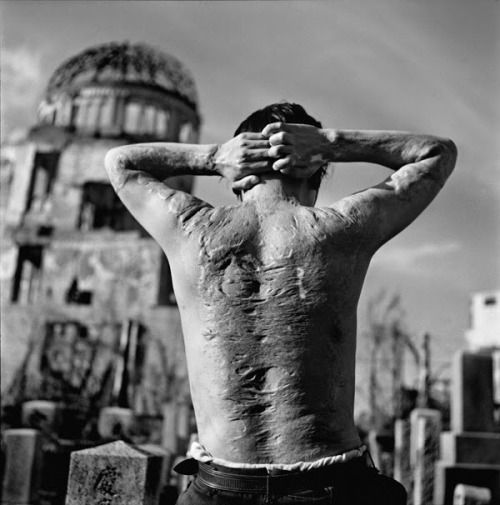 This is the back of a survivor of the Hiroshima nuclear explosion