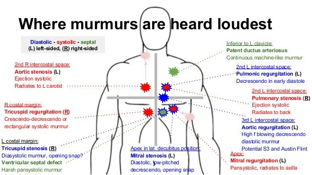 Where murmurs are heard loudest 2nd L intercostal space: Pulmonary stenosis (R) Ejection systolic Radiates to back Inferio...