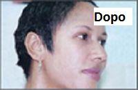 Mai più acne La presentazione video qui sopra mostra alcuni suggerimenti unici e rari per eliminare l'acne e ottenere una perfetta pelle pulita in appena 7..