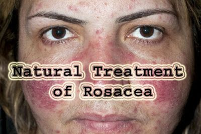 Natural Treatment for Rosacea , Top 7 Remedies for Rosacea.... - Beauty and Health Tips