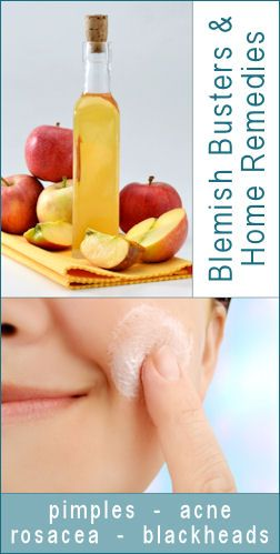 at home remedies for blemishes