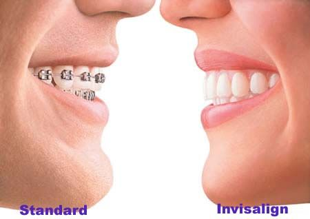 Good morning all you cyber-world fans. We are about to launch a fantastic contest. Stay tuned for the details coming soon.You could win over $5000.00 in dental services. Imagine a brand new set of Invisalign state of the art braces(see more about Invisalign at this link)Dr. Paulo Viana and staff.